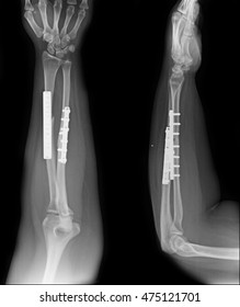 fracture shaft of radius & ulnar bone. It was operated and internal fixed by plate and screw. x-ray image.