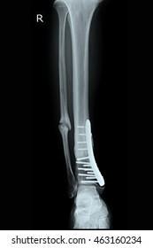 fracture tibia and fibula