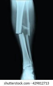Fracture tibia and fibula left leg