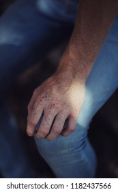 Freckles. Man with freckles. Photo of a hand