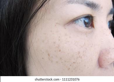 Image result for sun freckles asian