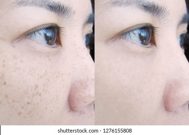 Freckles on Asian Woman Face, Skin Problems