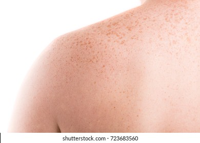 Freckles on back of man closeup on white background. Pigmentation and lot of birthmarks on male shoulders. Skin problems