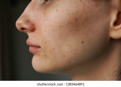 freckles on the girl's face
