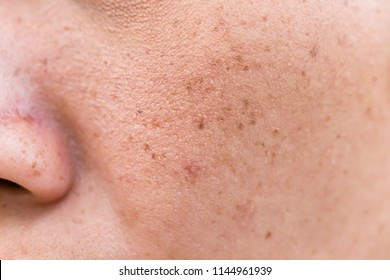 Freckles Over Asian Woman Face, Skin Problems