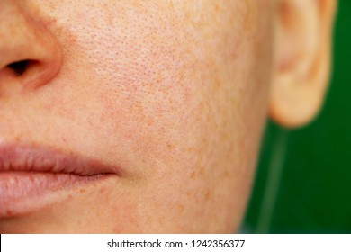 Freckles, pigmentation, enlarged pores. Girl with problem skin
