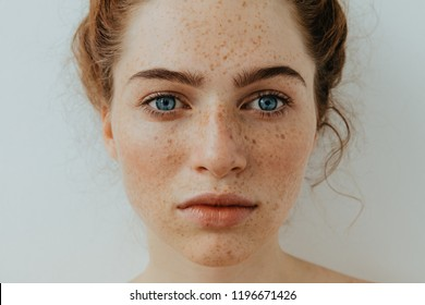 Freckles Woman portrait. Close-up. Beautiful blue eyed girl with freckles is looking at camera, on a white background