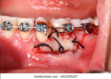 Free gingival graft (Tissue graft that harvested from the palate, used to treat gingival recession and inadequate attached gingiva) suturing to donor side at gingiva of lower premolar  tooth
