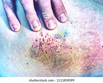 Fresh bruise on white skin.  Painful green purple huge  bruise on male leg.  The subcutaneous injury on human skin