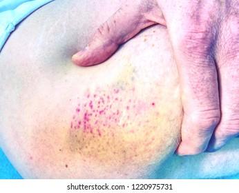 Fresh bruise on white skin.  Painful green purple huge  bruise on male leg.  The subcutaneous injury on human skin