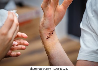 fresh scar on the wrist after tendon and nerve surgery