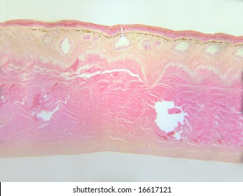 Frog skin-microscopic cross section.  Several mucous glands, one showing a prominent duct, are easily seen.