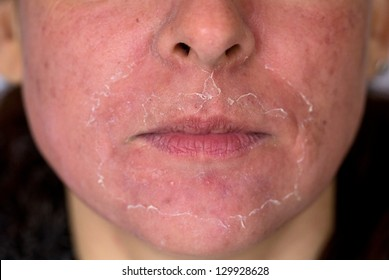 Front view of caucasian woman face after chemical peeling. Focus on mustache