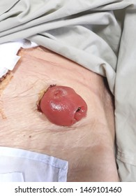 Front view closeup stoma and colostomy with long abdominal surgical scar, after colon cancer surgery. Bowel surgery