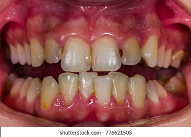 Front view of human decaying teeth. Bad condition.