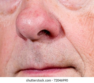 Front view of mature man's nose and upper lip with the mouth just visible