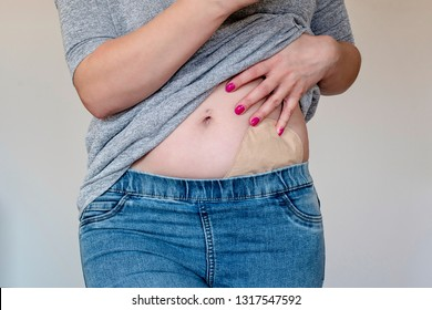 Front view on colostomy pouch in skin color attached to young woman patient. Close-up on ostomy bag after surgery hidden in jeans. Medical theme.