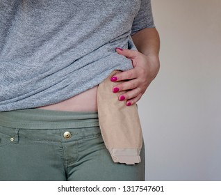Front view on colostomy pouch in skin color attached to young woman patient. Close-up on ostomy bag after surgery. Medical theme.