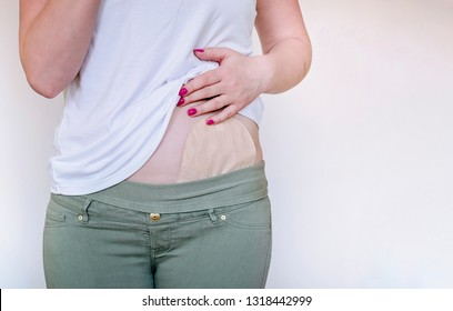 Front view on colostomy pouch in skin color attached to young woman patient. Close-up on ostomy bag after surgery. Medical theme. Negative space. Space for text.