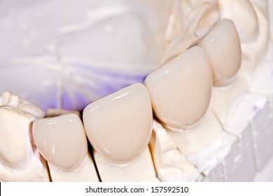 Frontal ceramic crowns in dental laboratory