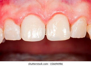 Frontal teeth after aesthetic restoration