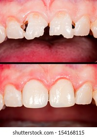 Frontal teeth before and after restoration