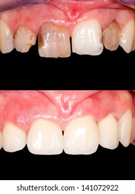 Frontal teeth restoration with ceramic crowns, before- after