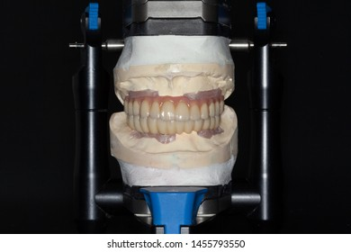 The frontal view of full arch full milled zirconia implant supported bridge with pink porcelain on a stone model mounted on an articulator with dark background