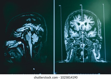 frontotemporal dementia with MRI