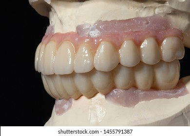 A full arch full milled zirconia implant supported bridge with pink porcelain on a stone model with lateral view and lighting in a dark background