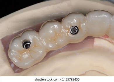A full arch full milled zirconia implant supported bridge on a stone model displaying the abutment screw holes