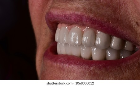 full denture on all on 8 implants