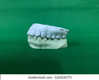 Full mouth plaster model of asian female teeth for night guard making (dental splint) isolated on green background