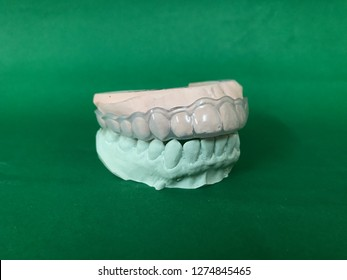 Full mouth plaster model of asian women teeth for night guard (occlusal splint) making isolated on green background