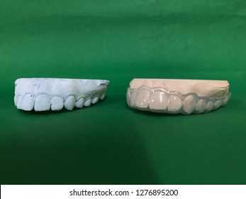 Full mouth plaster model of an asian woman for night guard making (occlusal splint) isolated on green background
