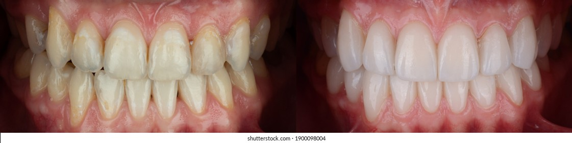 Full mouth pressed ceramic veneer for smile makeover, result in whiter and well aligned teeth.