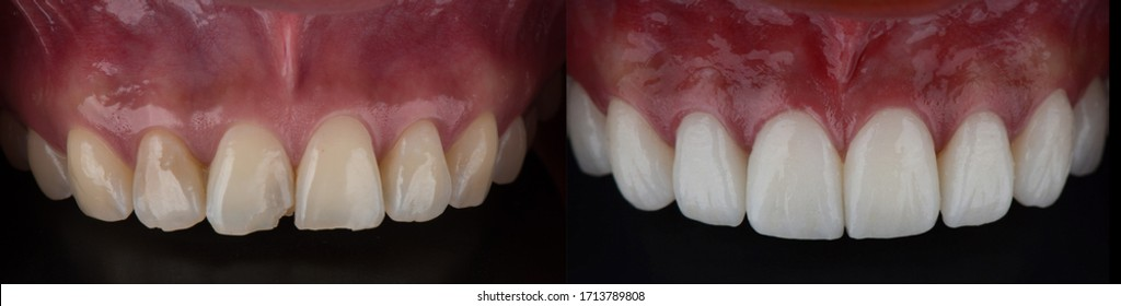Full mouth smile makeover with dental ceramic veneers treatment, present of clean, perfect, youth and white teeth smile. Before and after close upper teeth.