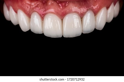 full smile reconstraction by precc ceramic crowns and veneers