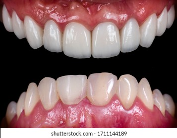 full upper jaw reconstraction by press ceramic crowns and veneers