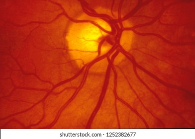 Fundus photography of the back of the eye - A normal human retina.