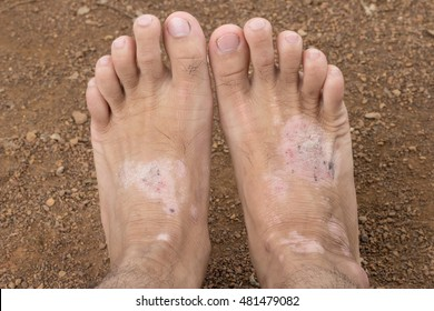 fungal infection images stock photos vectors shutterstock