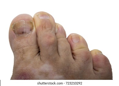 Fungal infection on the human toe. Psoriasis on the foot of an old man. Onychomycosis is a fungal infection of the big toe. Nail melanoma.