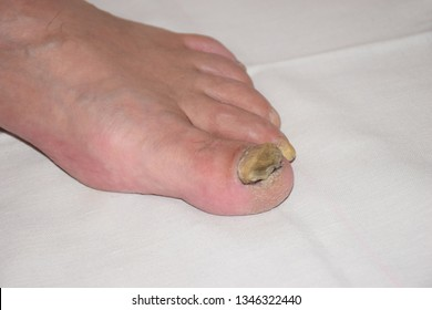 Fungal Nail Disease on the left Leg. Close up of nail fungus infection on the fingers. Nail fungus disease on the legs. Fungal infection on nails leg, fingers with onychomycosis.