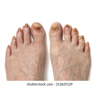 Fungal toenail infection, is readily apparent on all ten toes on these feet. Toenails are discolored and disfigured as a result of the fungal disease.