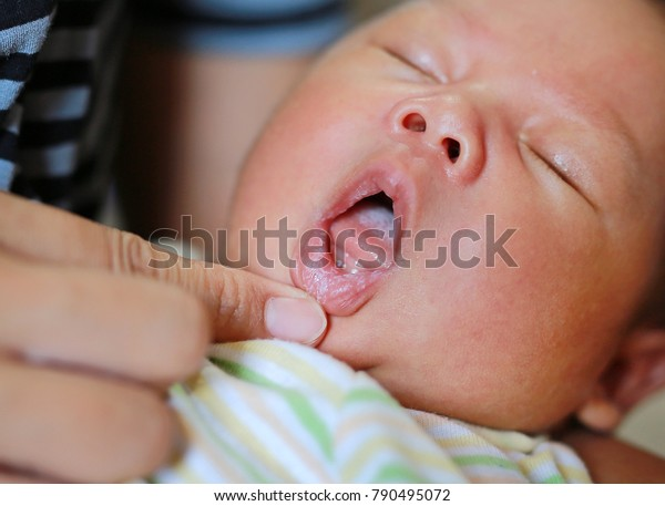 Fungus on the infant lip.