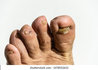 Fungus on nail plate of right leg on white background. All nail plates on foot is affected and mutilated by infection. Toenails are broken and peeling. Deformation of nail plate from nail fungus.