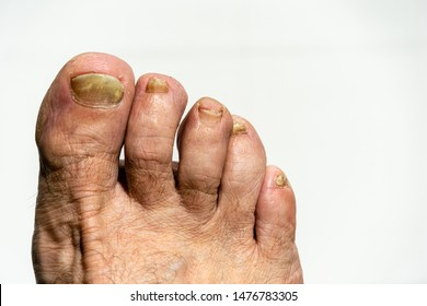 Fungus on toenail plate. Problems on toenails. Nail plate is affected by fungus. Toenails destroyed by infection. Finger nail fungus. Nail plates of toes are disfigured.