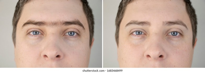 Fused eyebrows and sinofreeze in men. Photo before and after modeling eyebrows in a guy. Male self-care and a visit to a beautician or foreman