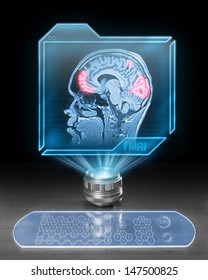 Futuristic computer with scan from functional magnetic resonance as part of research in cognitive neuroscience.