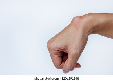Ganglion cyst on woman hand on white background